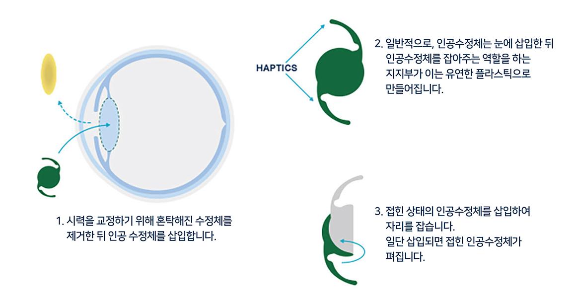 백내장 수술하는 동안 인공수정체를 삽입하는 이미지