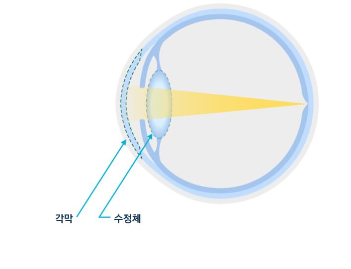 정상인의 눈 vs 백내장으로 인한 혼탁해진 수정체